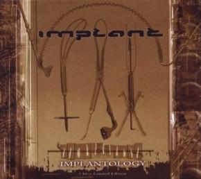 IMPLANT Implantology LIMITED 2CD BOX 2009